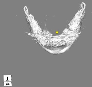 顎模型 ハレーション