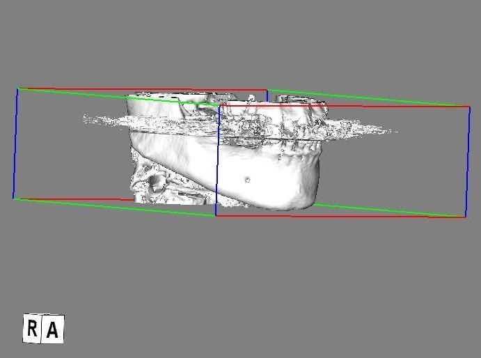 ハレーションモデル1